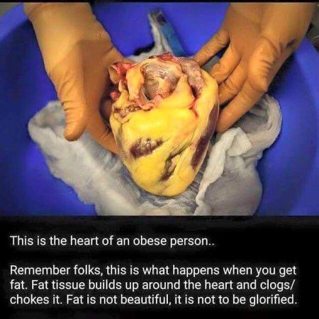 Fat Heart